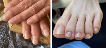 爪ってどんなものなの?①