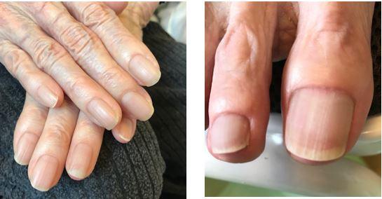 爪ってどんなものなの?②