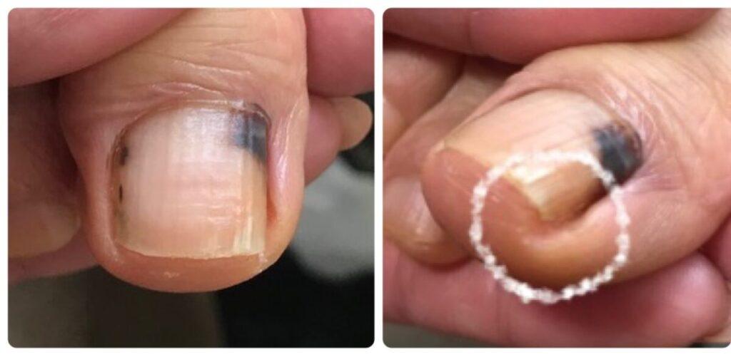 爪の中…内出血してしまいました。